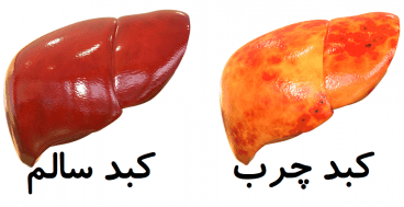 درمان کبد چرب توسط طب سنتی