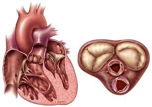 تحقیق درمورد دریچه های قلب
