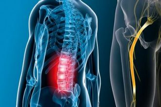درد سیاتیک و درمان کمر درد های شدید