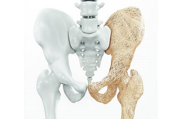 عوامل موثر بر پوسیدگی استخوان