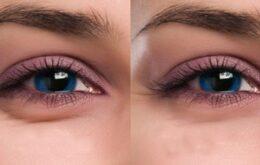 علل و درمان پف زیر چشم